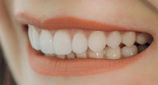 ציפוי שיניים בטורקיה מחירים