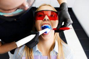 משחת שיניים להלבנת שיניים בלייזר - אלטרנטיבה פופולרית